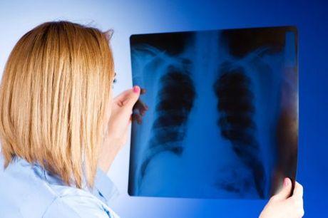 zápal pluc bakterilany studeny zapal pluc choroba bakterie