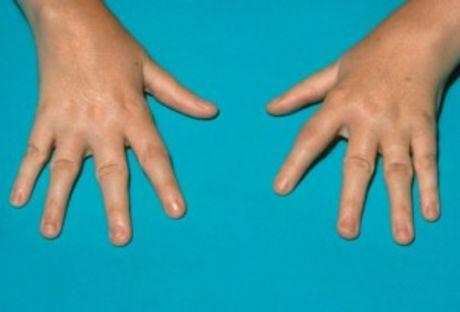 46b4eba8d Reumatoidná artritída od A po Z | Kosti a kĺby | Končatiny | Detské ...