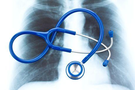 zapal pluc, rontgen, chore dieta, choroba, bakterie