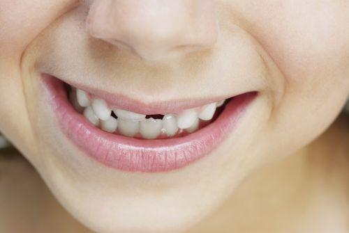 6 tipov, ako pomôcť dieťaťu, čo škrípe zubami