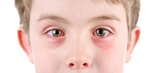Zápal očných spojiviek u detí