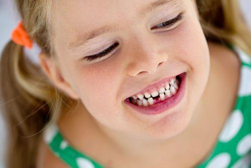 Bruxizmus – škrípanie zubami