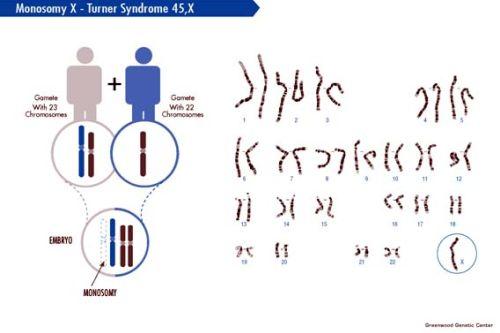 Turnerov syndróm