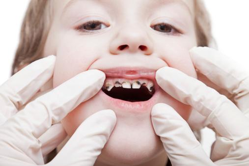 Zubný kaz u detí a jeho príčiny